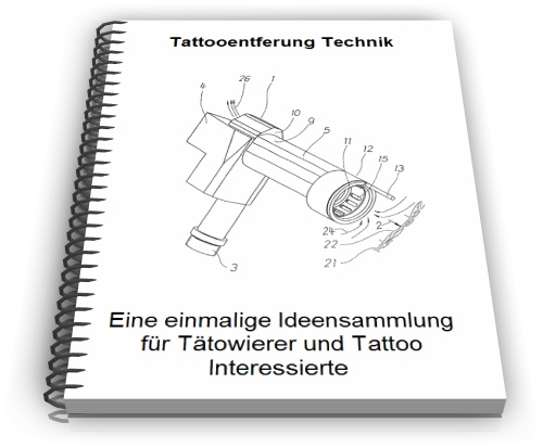 Tattooentfernung Technik